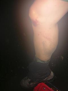 knee carnage